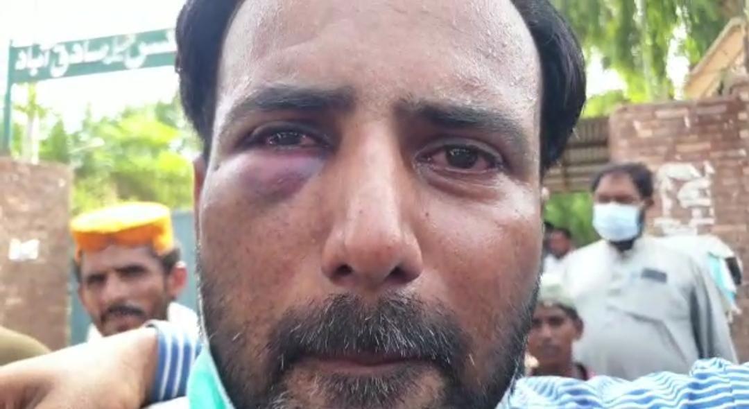 پی ایف یو جے کا صدر پریس کلب بھونگ اصغر علی پر جھوٹے مقدمات اور بہیمانہ تشدد پر جوڈیشل کمیشن بنانے کا مطالبہ